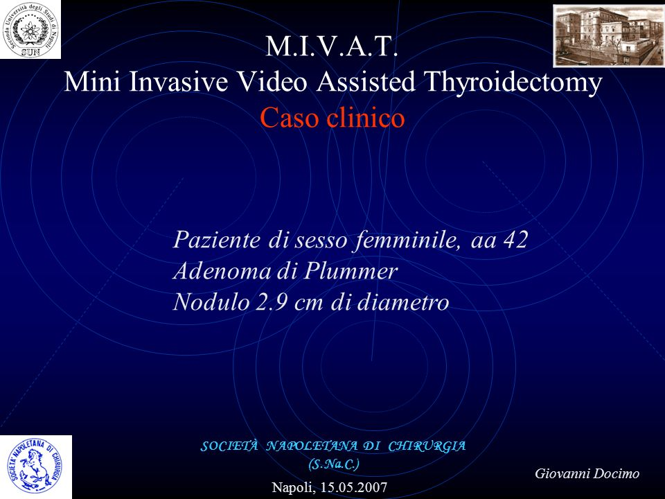 M.I.V.A.T. Mini Invasive Video Assisted Thyroidectomy Caso clinico SOCIETÀ NAPOLETANA DI CHIRURGIA (S.Na.C.) Napoli, 15.05.2007 Giovanni Docimo Pazien