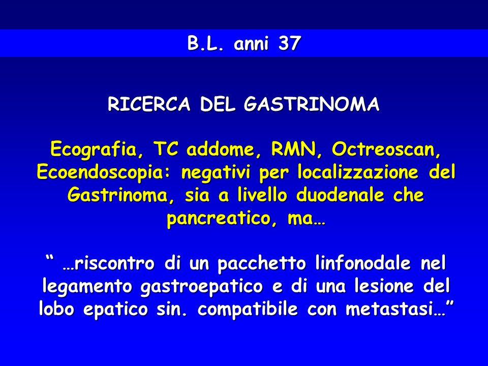RICERCA DEL GASTRINOMA Ecografia, TC addome, RMN, Octreoscan, Ecoendoscopia: negativi per localizzazione del Gastrinoma, sia a livello duodenale che p
