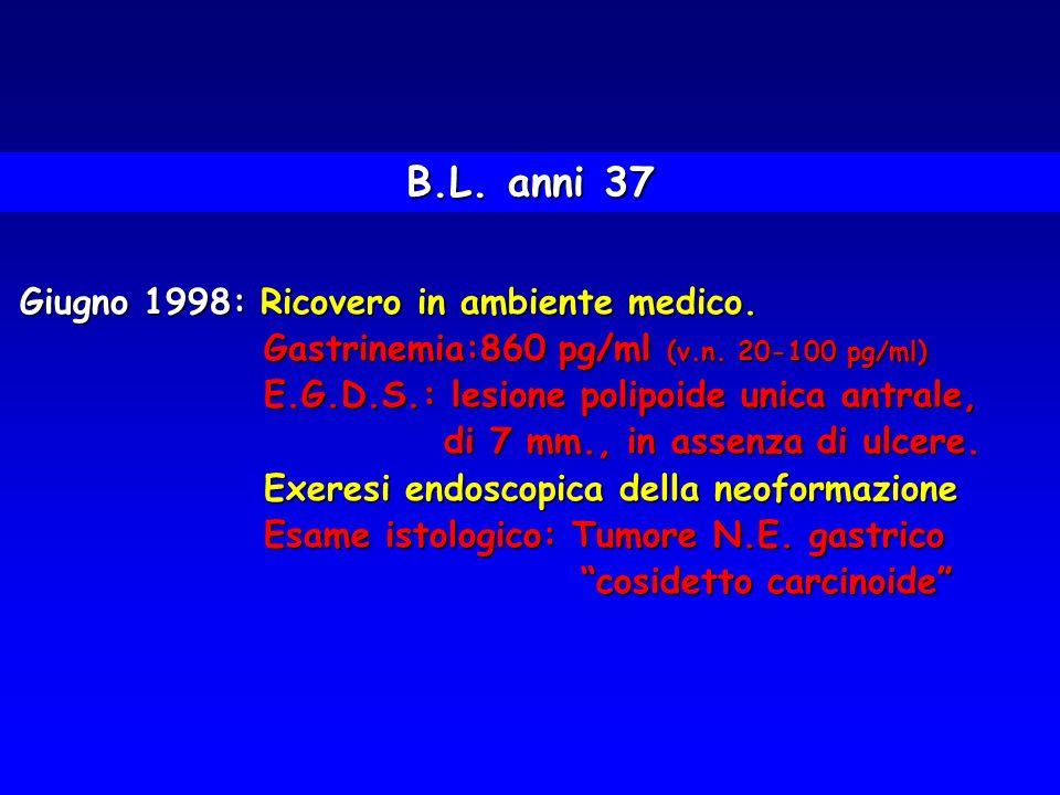 Giugno 1998: Ricovero in ambiente medico. Gastrinemia:860 pg/ml (v.n. 20-100 pg/ml) Gastrinemia:860 pg/ml (v.n. 20-100 pg/ml) E.G.D.S.: lesione polipo