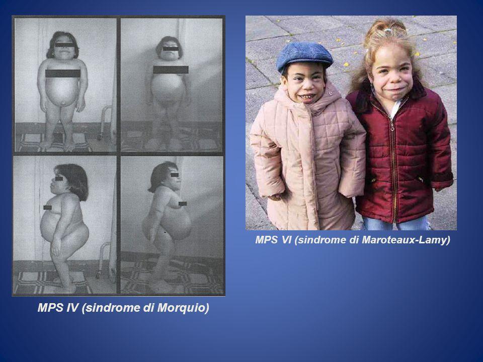 MPS IV (sindrome di Morquio) MPS VI (sindrome di Maroteaux-Lamy)