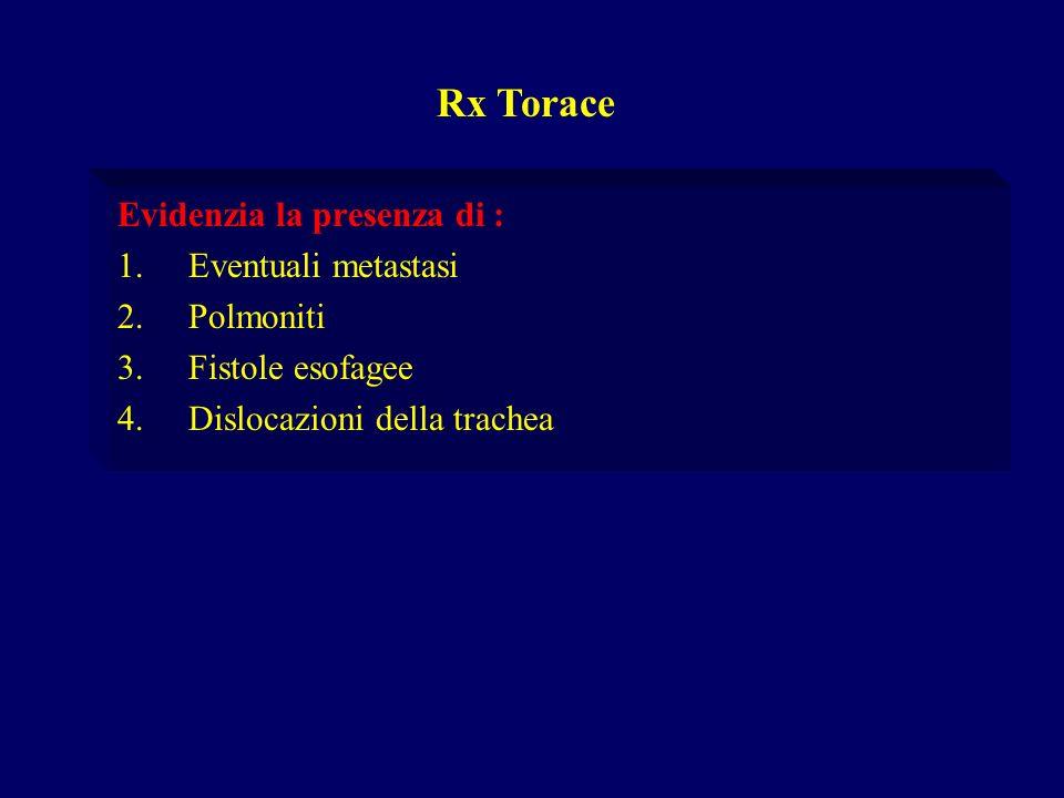 Evidenzia la presenza di : 1.Eventuali metastasi 2.Polmoniti 3.Fistole esofagee 4.Dislocazioni della trachea Rx Torace