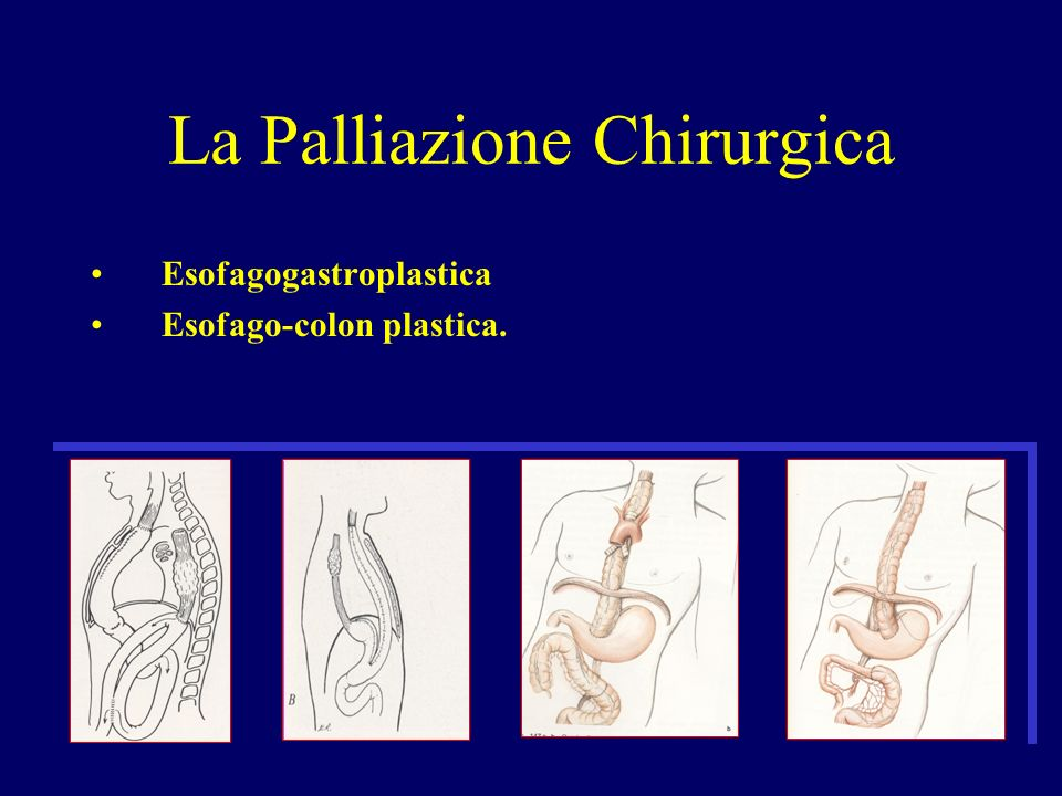 La Palliazione Chirurgica Esofagogastroplastica Esofago-colon plastica.