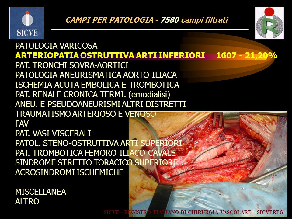 CAMPI PER PATOLOGIA - 7580 campi filtrati PATOLOGIA VARICOSA ARTERIOPATIA OSTRUTTIVA ARTI INFERIORI 1607 - 21,20% PAT. TRONCHI SOVRA-AORTICI PATOLOGIA