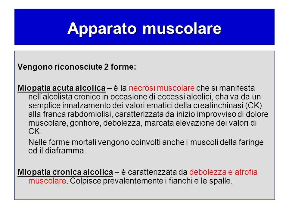 Apparato muscolare Vengono riconosciute 2 forme: Miopatia acuta alcolica Miopatia acuta alcolica – è la necrosi muscolare che si manifesta nellalcolis