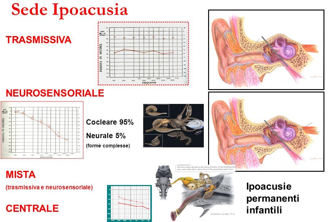 Gravità Ipoacusia GRAVITA IPOACUSIA (0,5 – 1 – 2 – 4 KHz) BIAP Bureau International d Audiophonologie (1996) Come causa di disabilità nel bambino > 30 dB HL lieve media grave profonda