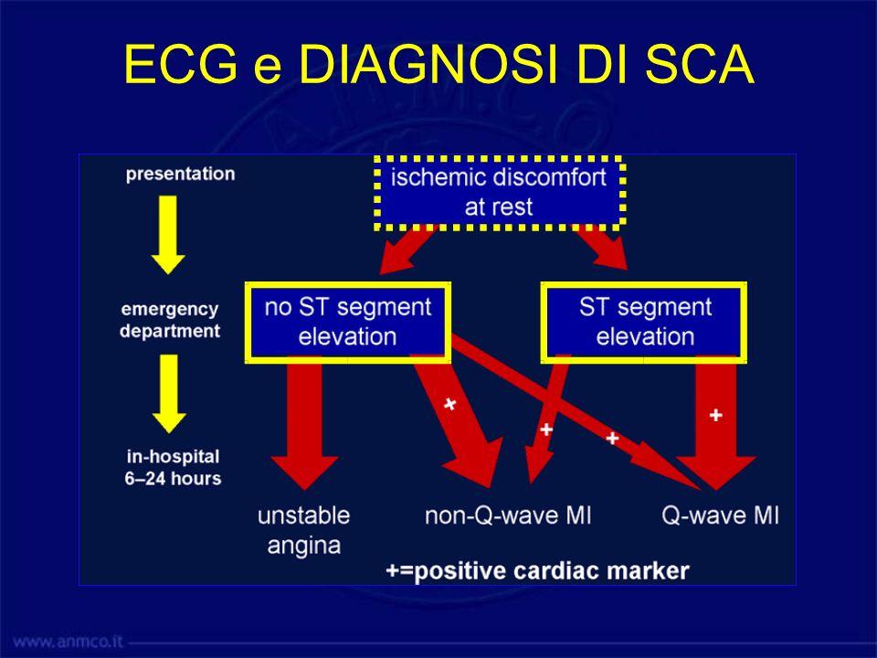 Sede dellinfarto Il sopraslivellamento di ST identifica la sede dellinfarto La comparsa di onda Q identifica la sede dellinfarto