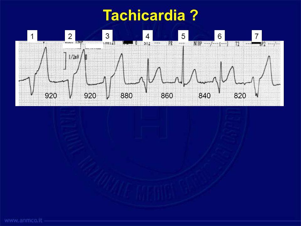 920880920 860840 820 12 3 4567 Tachicardia ?