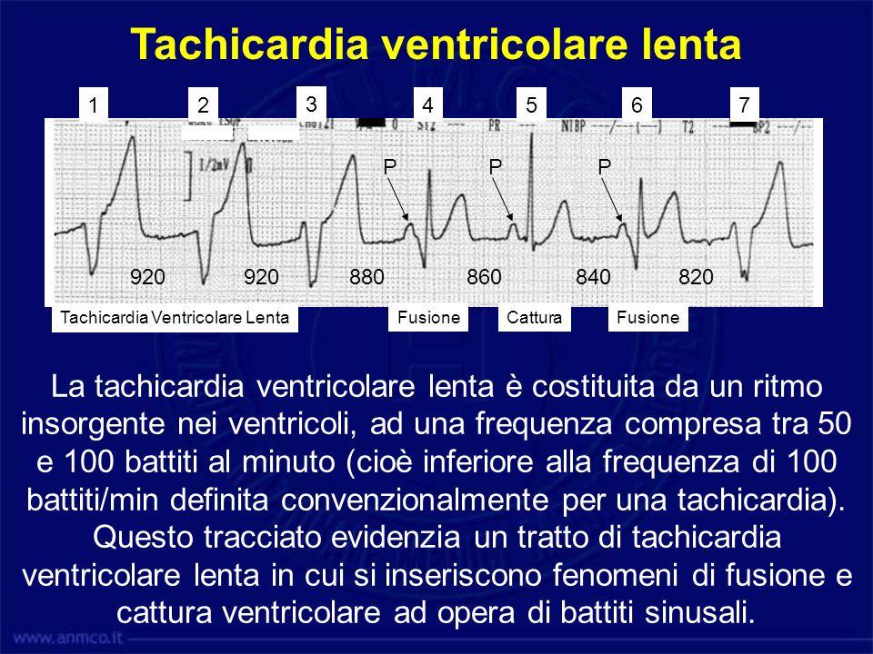 920880920 860840 820 P PP 12 3 4567 Tachicardia Ventricolare Lenta CatturaFusione Tachicardia ventricolare lenta La tachicardia ventricolare lenta è c