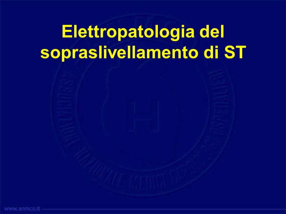 Elettropatologia dellinversione della T (post)ischemica Normale: Rip Epi-Endo: T+ PostIschemia: Rip Endo-Epi: T-