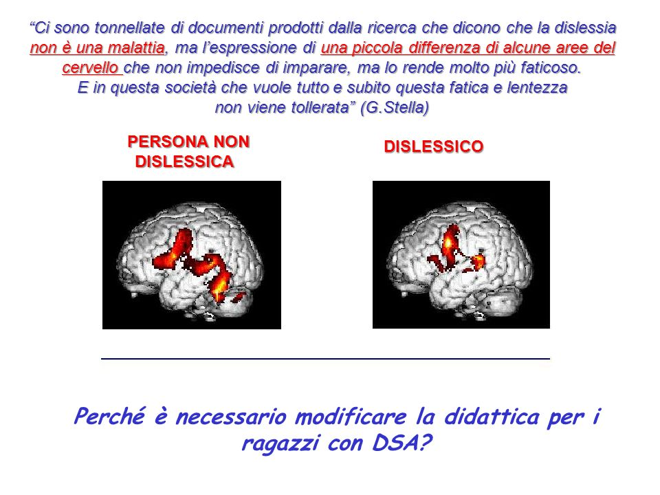 Perché è necessario modificare la didattica per i ragazzi con DSA? PERSONA NON DISLESSICA DISLESSICO Ci sono tonnellate di documenti prodotti dalla ri