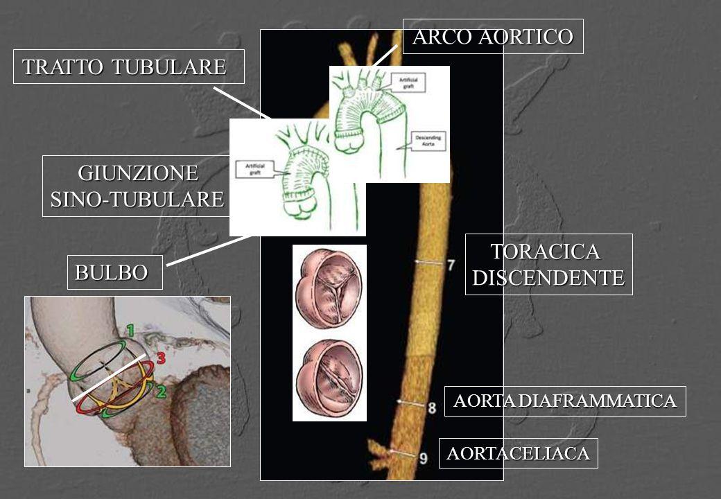 BULBO GIUNZIONESINO-TUBULARE TRATTO TUBULARE ARCO AORTICO TORACICADISCENDENTE AORTA DIAFRAMMATICA AORTACELIACA