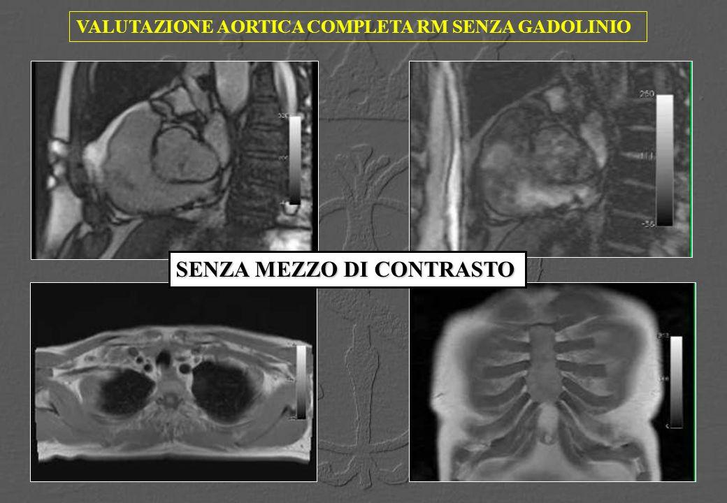 VALUTAZIONE AORTICA COMPLETA RM SENZA GADOLINIO SENZA MEZZO DI CONTRASTO