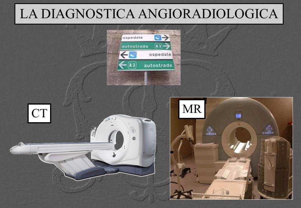 CONFRONTO RMN E ANGIO-TC POST INTERVENTO RMN TC RMN TC RMN 3D