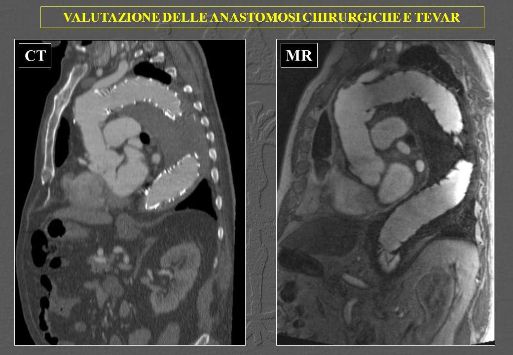 VALUTAZIONE DELLE ANASTOMOSI CHIRURGICHE E TEVAR CTMR CT MR