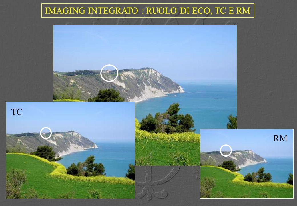IMAGING INTEGRATO : RUOLO DI ECO, TC E RM RM TC