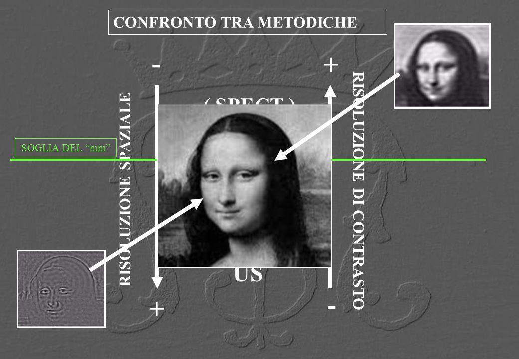 ( SPECT ) MR CT US + - RISOLUZIONE SPAZIALE + - RISOLUZIONE DI CONTRASTO CONFRONTO TRA METODICHE SOGLIA DEL mm