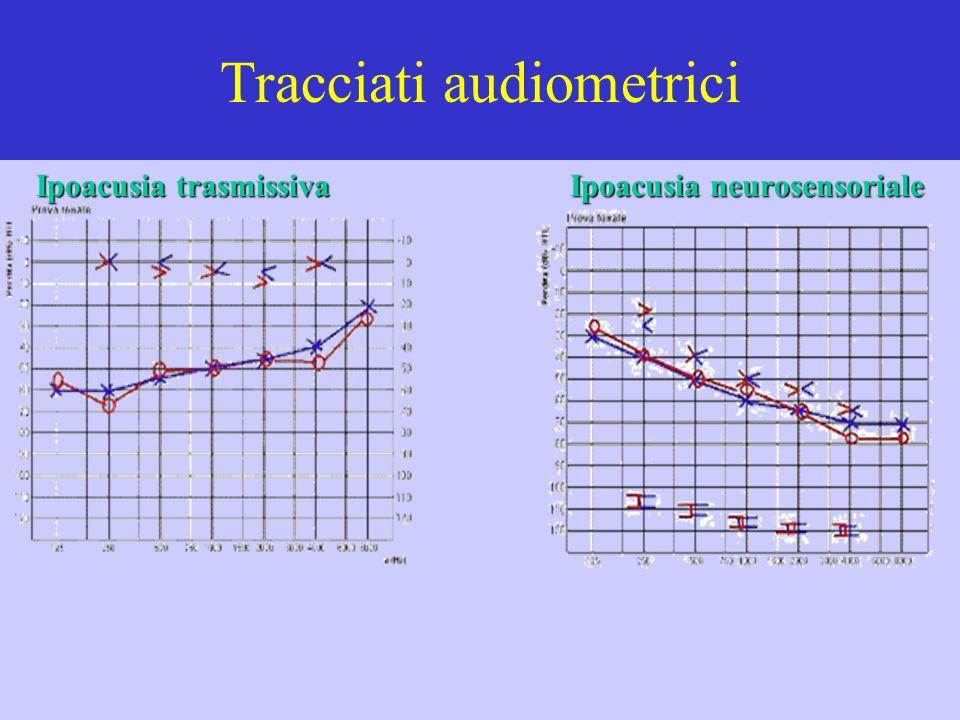 Tracciati audiometrici Ipoacusia trasmissiva Ipoacusia neurosensoriale