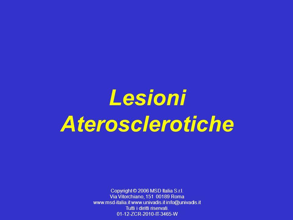 Lesioni Aterosclerotiche Copyright © 2006 MSD Italia S.r.l. Via Vitorchiano, 151 00189 Roma www.msd-italia.it www.univadis.it info@univadis.it Tutti i