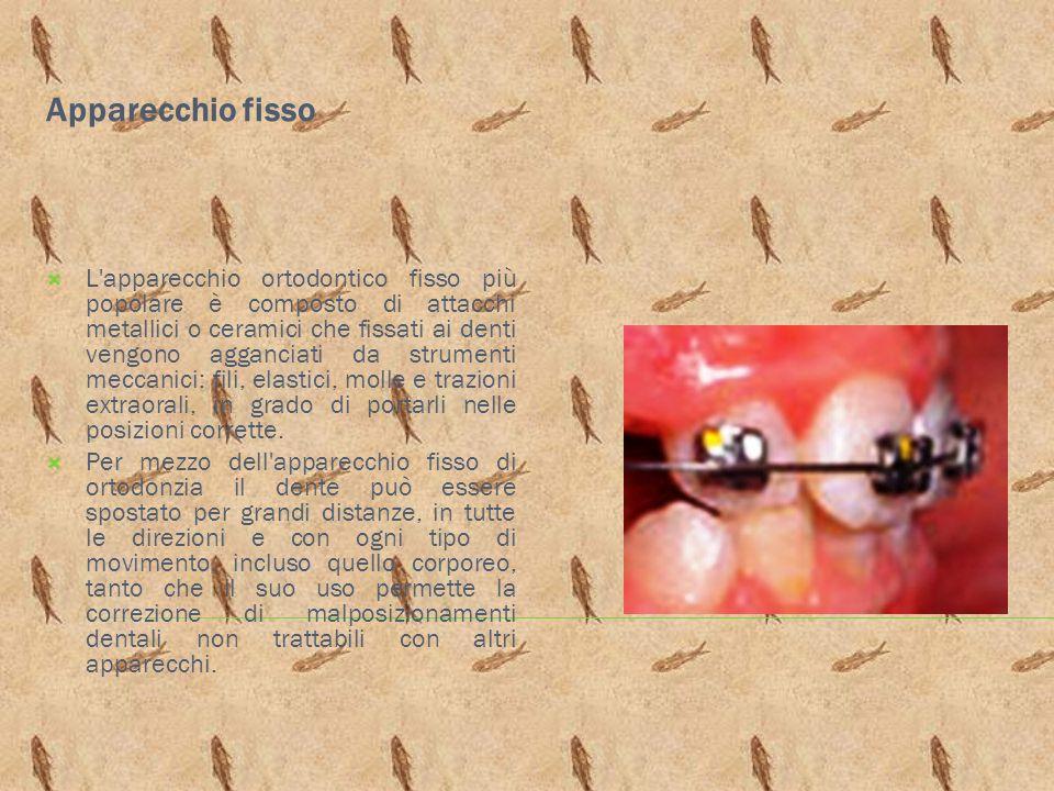 Apparecchio fisso L'apparecchio ortodontico fisso più popolare è composto di attacchi metallici o ceramici che fissati ai denti vengono agganciati da