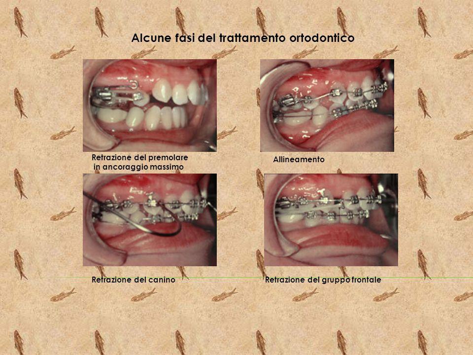 Alcune fasi del trattamento ortodontico Retrazione del premolare in ancoraggio massimo Allineamento Retrazione del caninoRetrazione del gruppo frontal