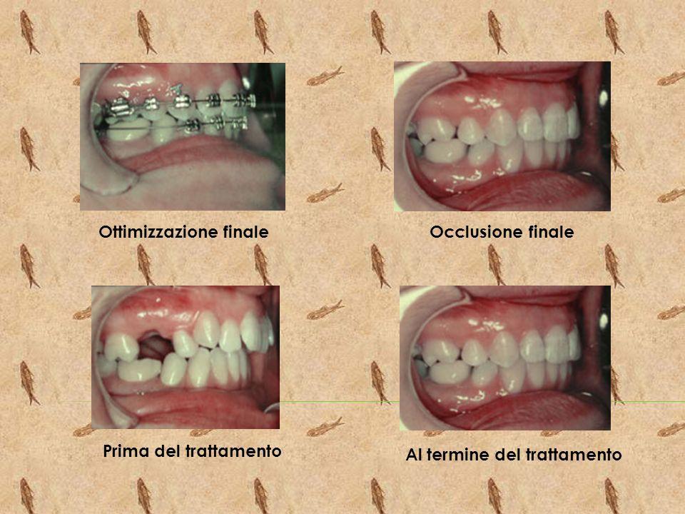 Ottimizzazione finaleOcclusione finale Prima del trattamento Al termine del trattamento