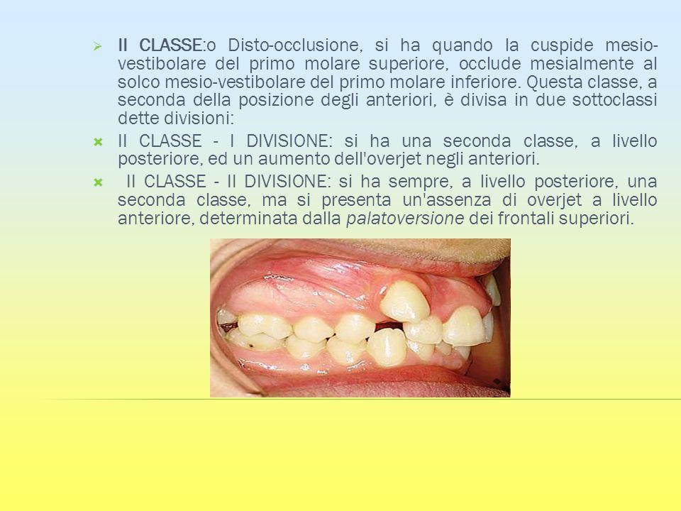 II CLASSE:o Disto-occlusione, si ha quando la cuspide mesio- vestibolare del primo molare superiore, occlude mesialmente al solco mesio-vestibolare de