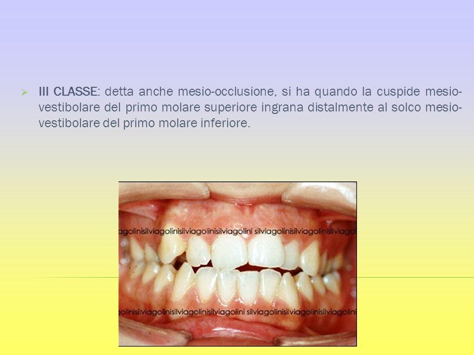 III CLASSE: detta anche mesio-occlusione, si ha quando la cuspide mesio- vestibolare del primo molare superiore ingrana distalmente al solco mesio- ve