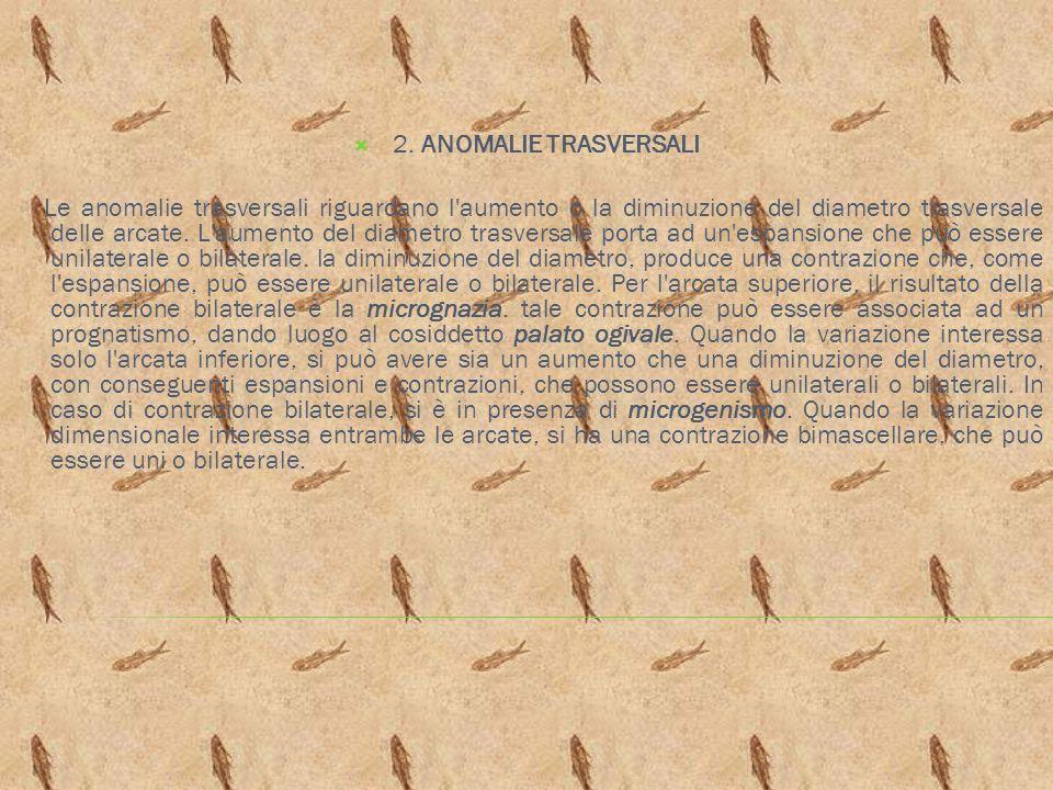 2. ANOMALIE TRASVERSALI Le anomalie trasversali riguardano l'aumento o la diminuzione del diametro trasversale delle arcate. L'aumento del diametro tr