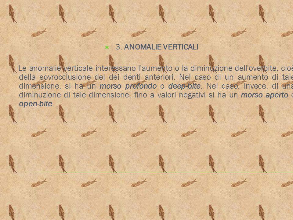 3. ANOMALIE VERTICALI Le anomalie verticale interessano l'aumento o la diminuzione dell'overbite, cioè della sovrocclusione dei dei denti anteriori. N