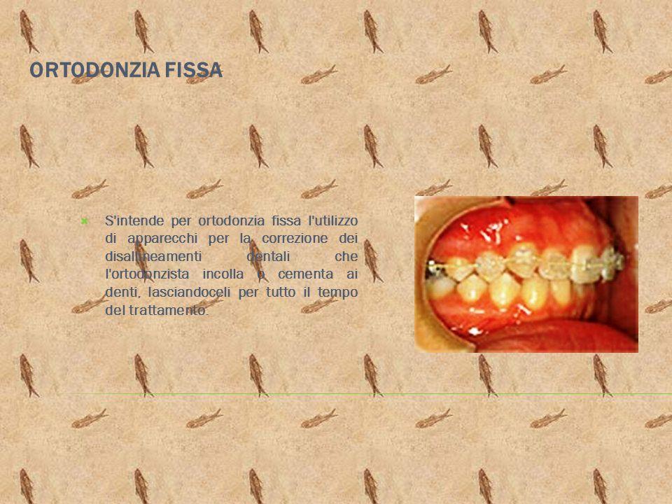ORTODONZIA FISSA S'intende per ortodonzia fissa l'utilizzo di apparecchi per la correzione dei disallineamenti dentali che l'ortodonzista incolla o ce