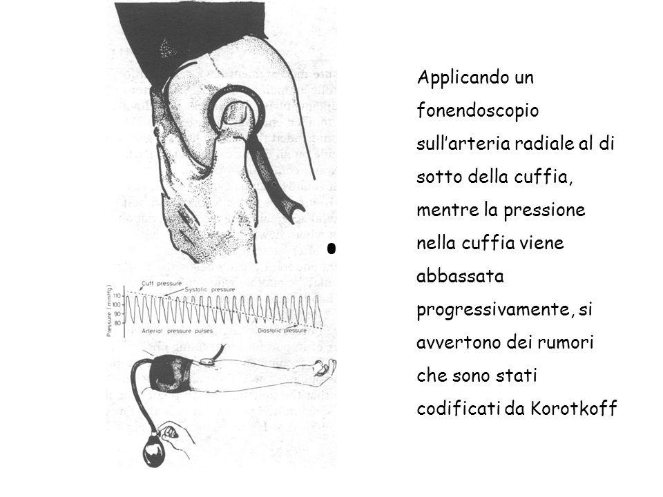 Applicando un fonendoscopio sullarteria radiale al di sotto della cuffia, mentre la pressione nella cuffia viene abbassata progressivamente, si avvert
