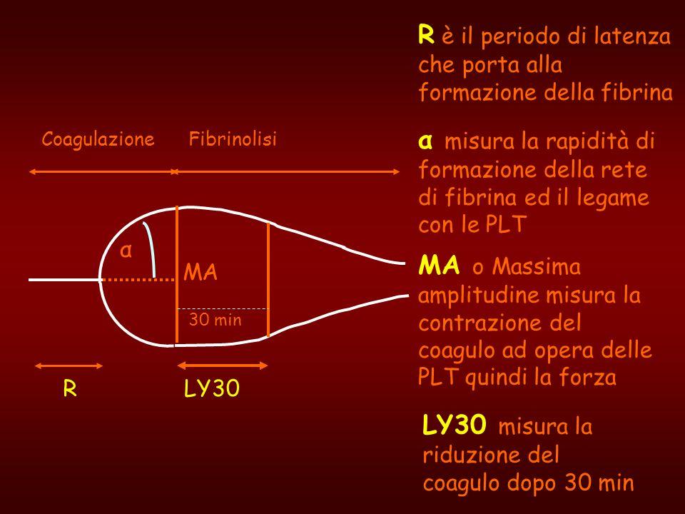 R α MA 30 min CoagulazioneFibrinolisi LY30 R è il periodo di latenza che porta alla formazione della fibrina α misura la rapidità di formazione della