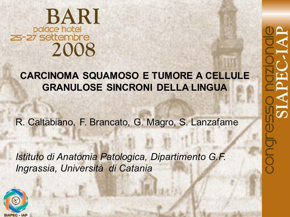 CARCINOMA SQUAMOSO E TUMORE A CELLULE GRANULOSE SINCRONI DELLA LINGUA R. Caltabiano, F. Brancato, G. Magro, S. Lanzafame Istituto di Anatomia Patologi