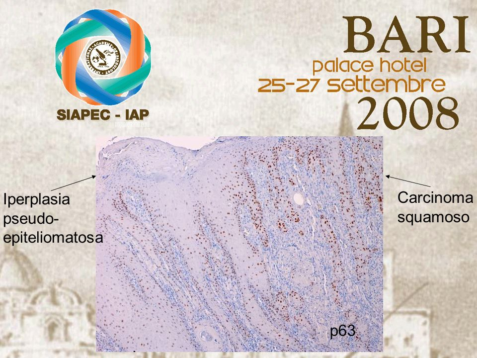 p63 Carcinoma squamoso Iperplasia pseudo- epiteliomatosa