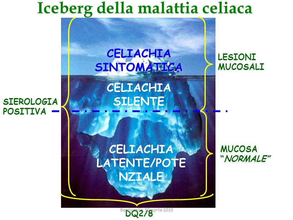 Iceberg della malattia celiaca LESIONI MUCOSALI MUCOSANORMALE CELIACHIA SILENTE CELIACHIA LATENTE/POTE NZIALE CELIACHIA SINTOMATICA SIEROLOGIA POSITIV