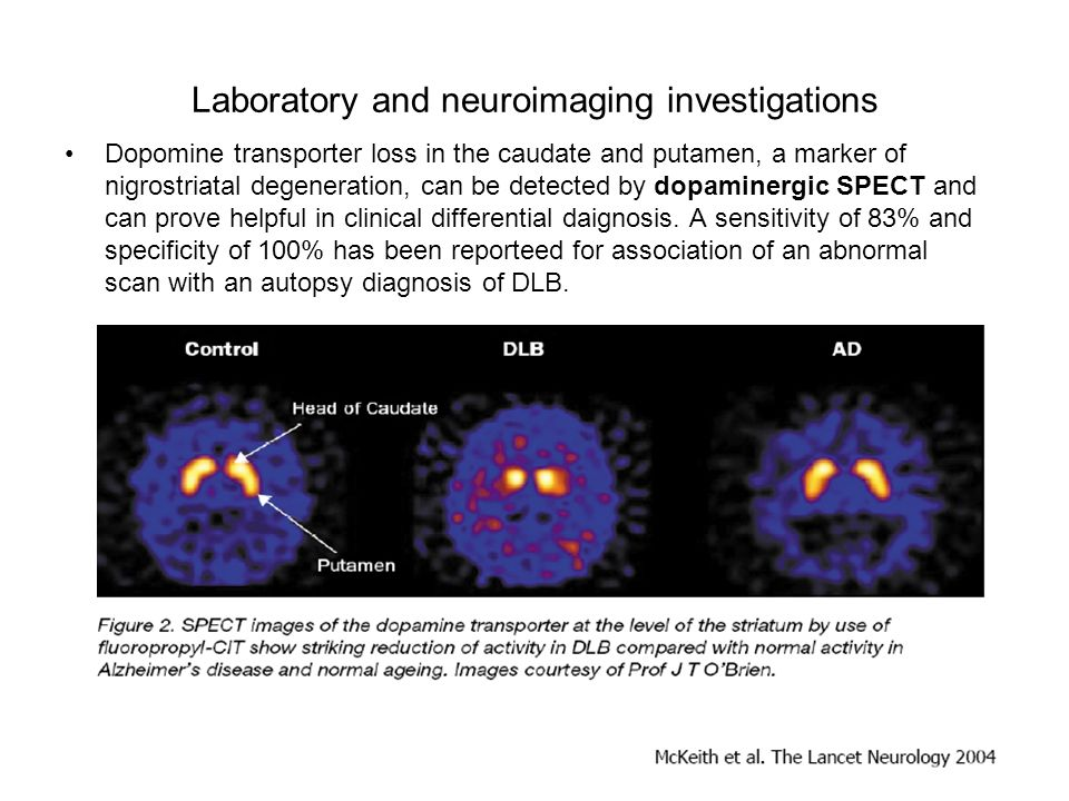 Laboratory and neuroimaging investigations Dopomine transporter loss in the caudate and putamen, a marker of nigrostriatal degeneration, can be detect