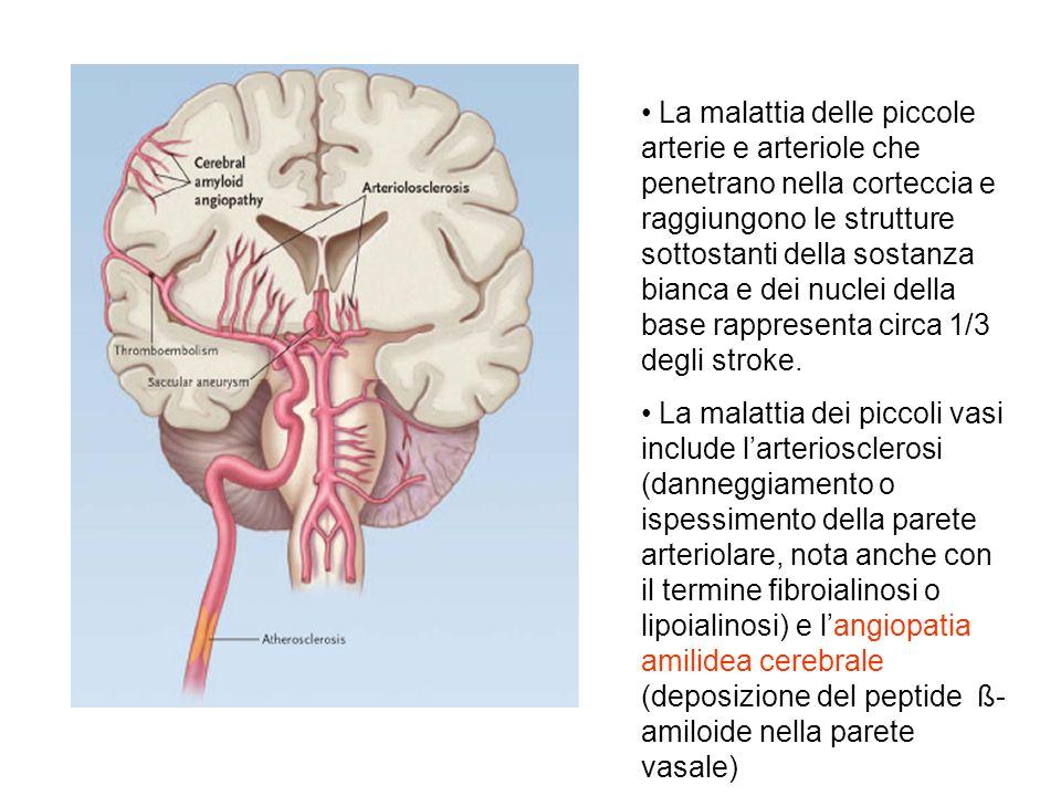 La malattia delle piccole arterie e arteriole che penetrano nella corteccia e raggiungono le strutture sottostanti della sostanza bianca e dei nuclei