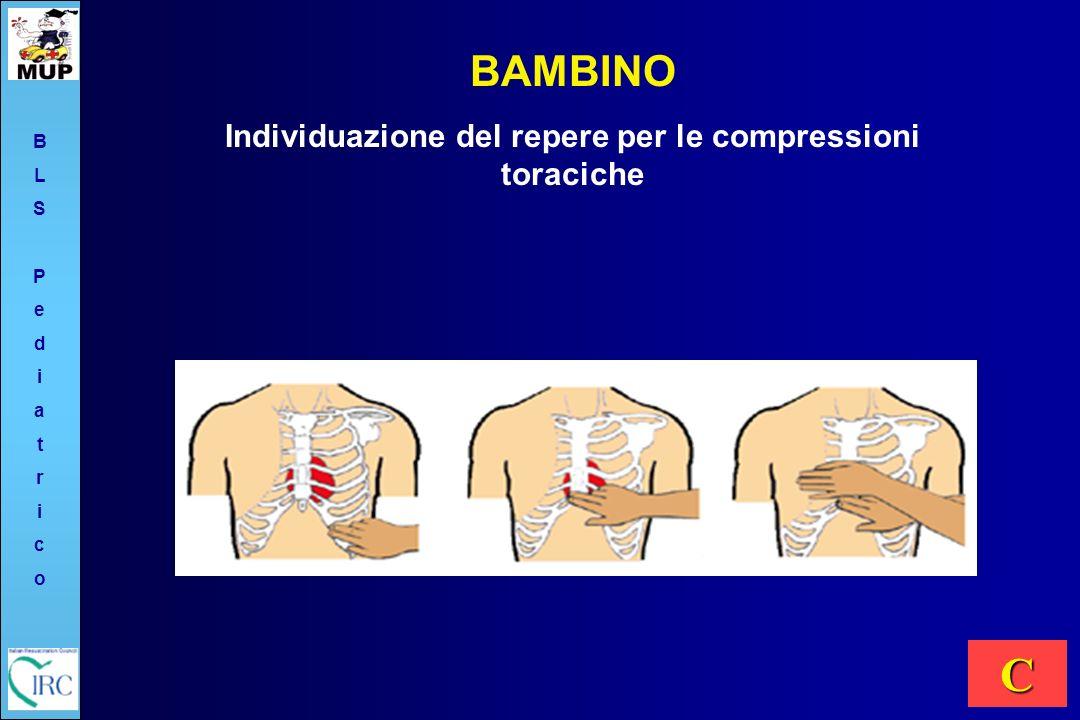 BAMBINO Individuazione del repere per le compressioni toraciche C BLSPediatricoBLSPediatrico