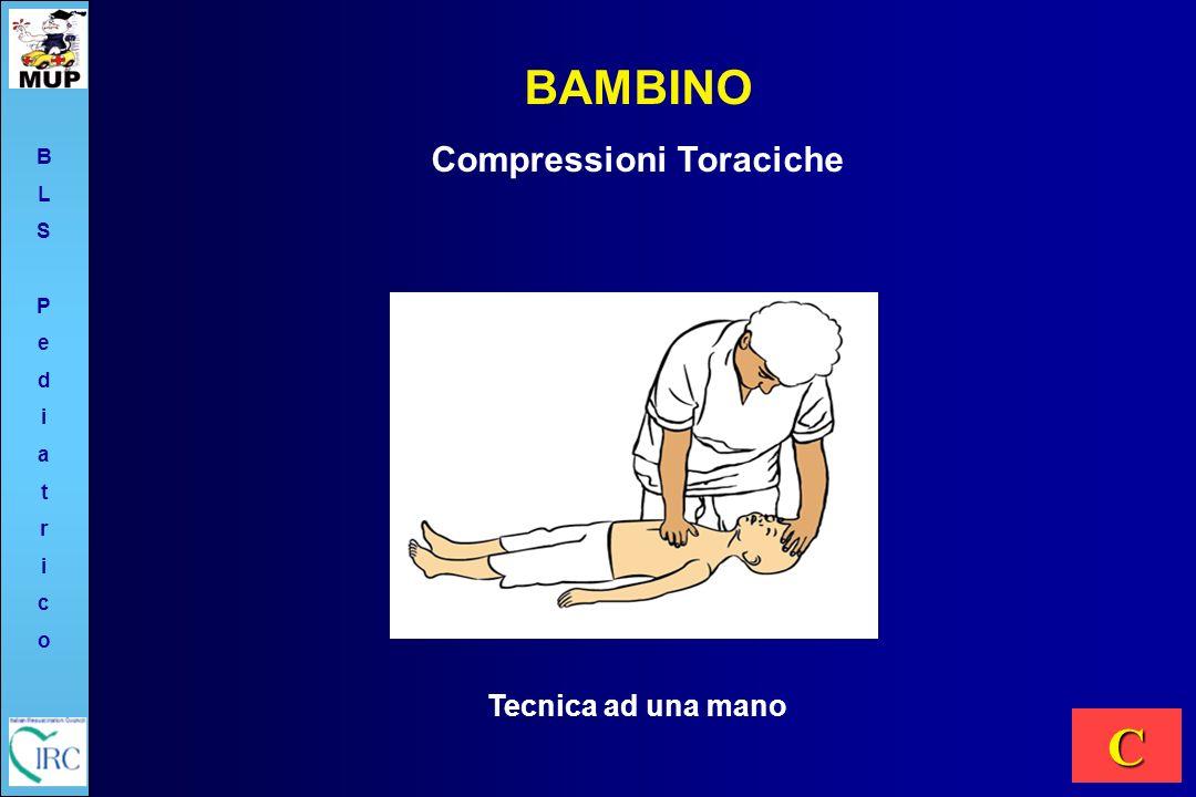 Tecnica ad una mano BAMBINO Compressioni Toraciche C BLSPediatricoBLSPediatrico
