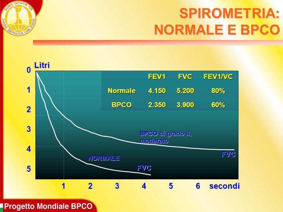5 0 1 2 3 4 123456 FVC FVC BPCO di grado II, moderato NORMALE secondiLitri FEV1FVCFEV1/VCNormale4.1505.20080% BPCO2.3503.90060% SPIROMETRIA: NORMALE E