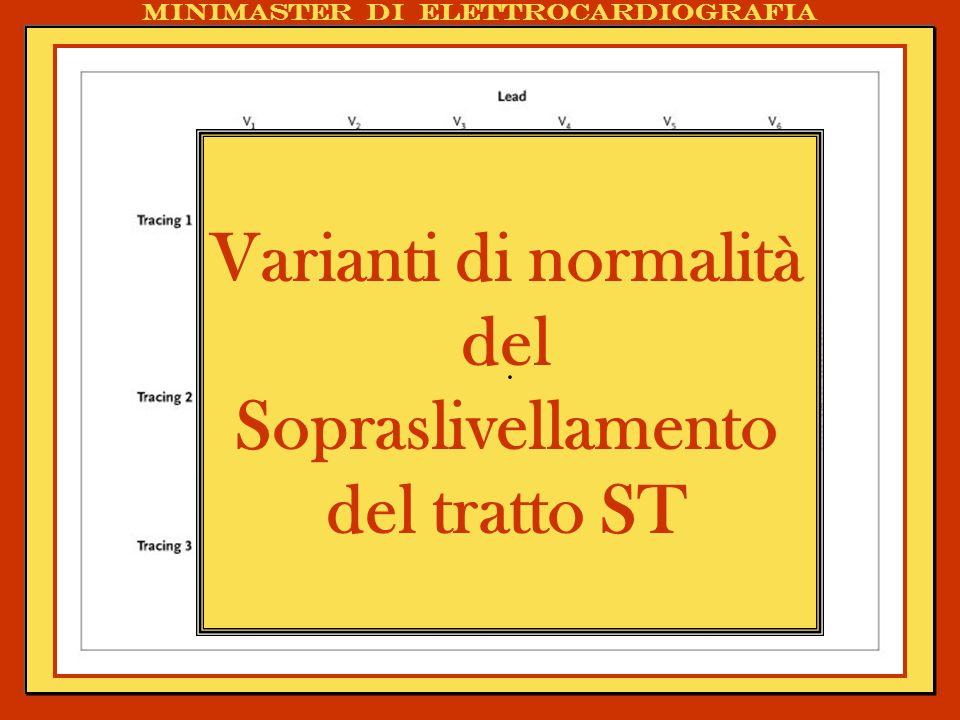 . Varianti di normalità del Sopraslivellamento del tratto ST Minimaster di elettrocardiografia