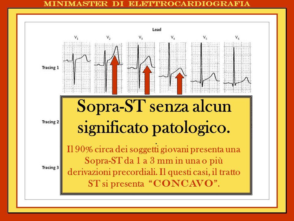 . Sopra-ST senza alcun significato patologico. Il 90% circa dei soggetti giovani presenta una Sopra-ST da 1 a 3 mm in una o più derivazioni precordial