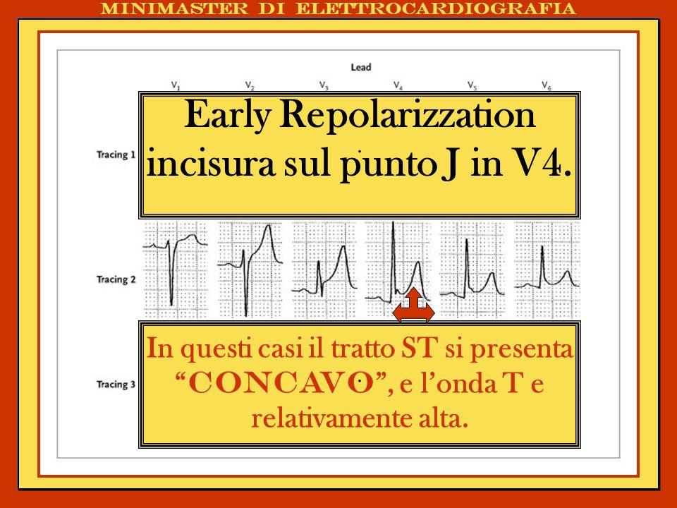 . Early Repolarizzation incisura sul punto J in V4.. In questi casi il tratto ST si presenta concavo, e londa T e relativamente alta. Minimaster di el