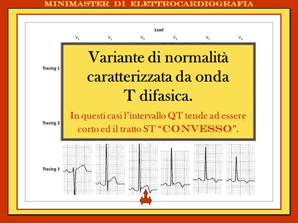 . Variante di normalità caratterizzata da onda T difasica. In questi casi lintervallo QT tende ad essere corto ed il tratto ST convesso.
