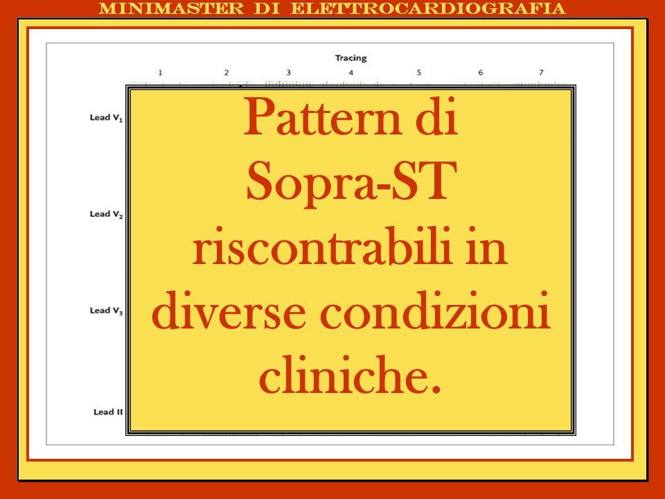 . Pattern di Sopra-ST riscontrabili in diverse condizioni cliniche. Minimaster di elettrocardiografia