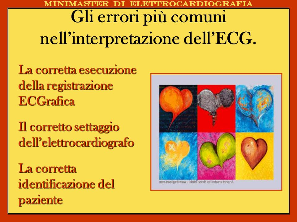 Gli errori più comuni nellinterpretazione dellECG. La corretta esecuzione della registrazione ECGrafica Il corretto settaggio dellelettrocardiografo L