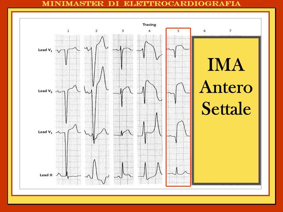 . IMA Antero Settale Minimaster di elettrocardiografia