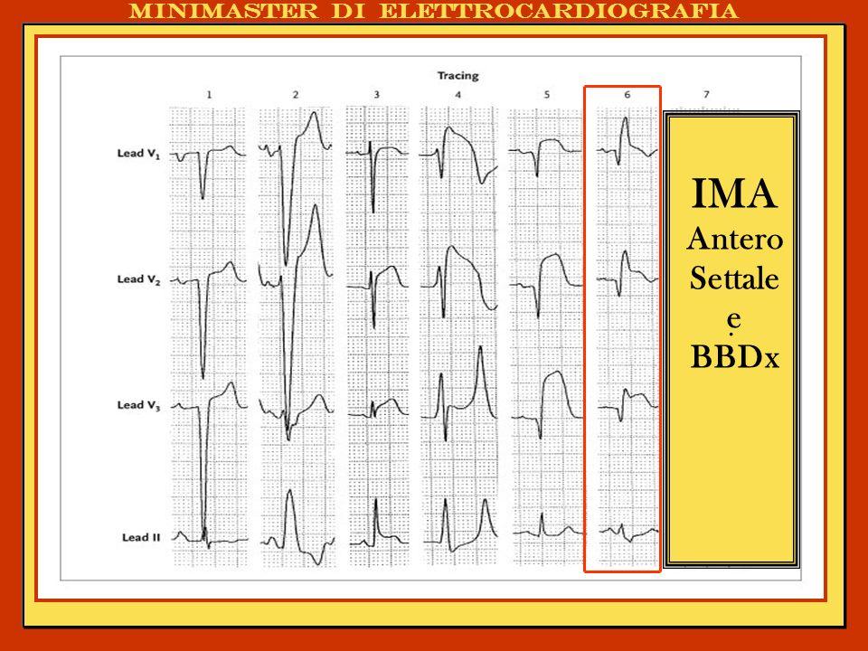 . IMA Antero Settale e BBDx Minimaster di elettrocardiografia