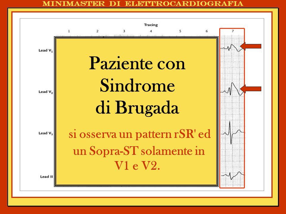 . Paziente con Sindrome di Brugada si osserva un pattern rSR' ed un Sopra-ST solamente in V1 e V2. Minimaster di elettrocardiografia