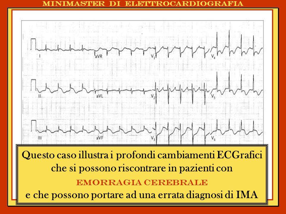 Gli errori più comuni nellinterpretazione dellECG. Varianti cliniche ed ECG Minimaster di elettrocardiografia Questo caso illustra i profondi cambiame